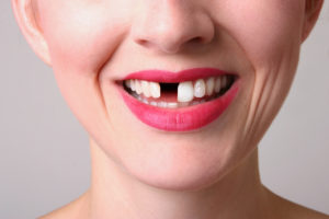 woman smiling missing tooth