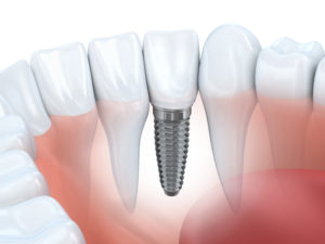 Picture of a dental implant