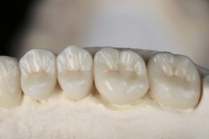 dental crowns placed on a model of a mouth