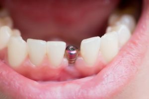 A person with a dental implant in Spring Hill.