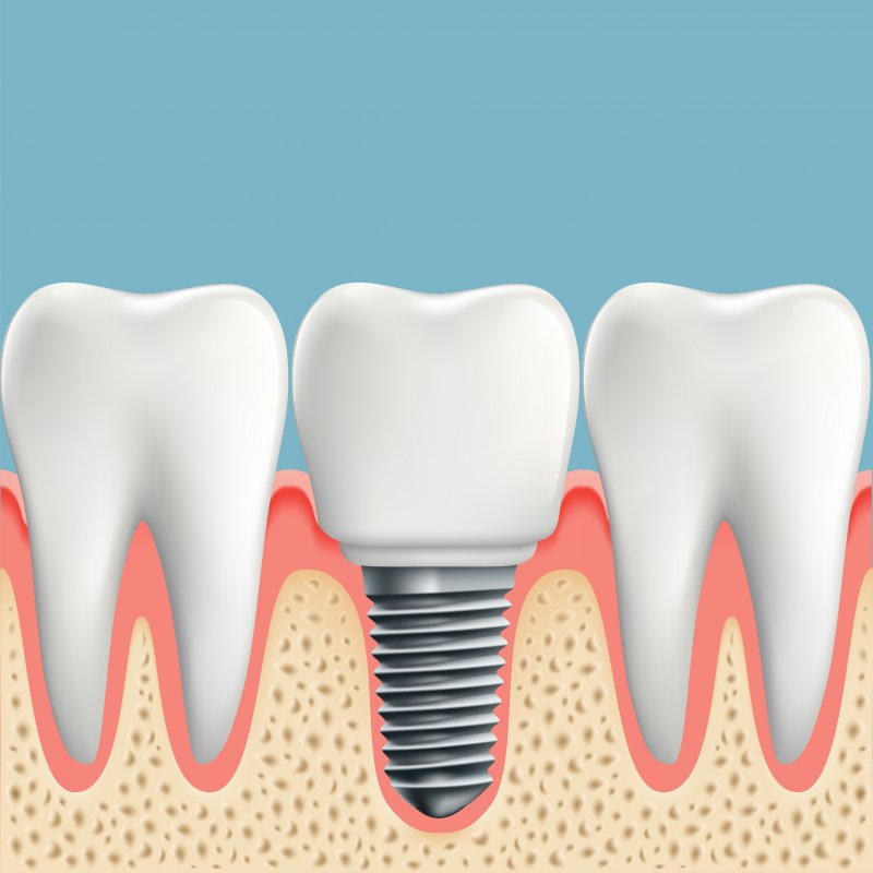 Stock illustration of implant with natural teeth